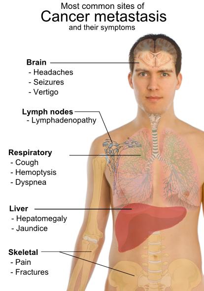 Metastaza - Ce sunt metastazele canceroase | Cancer