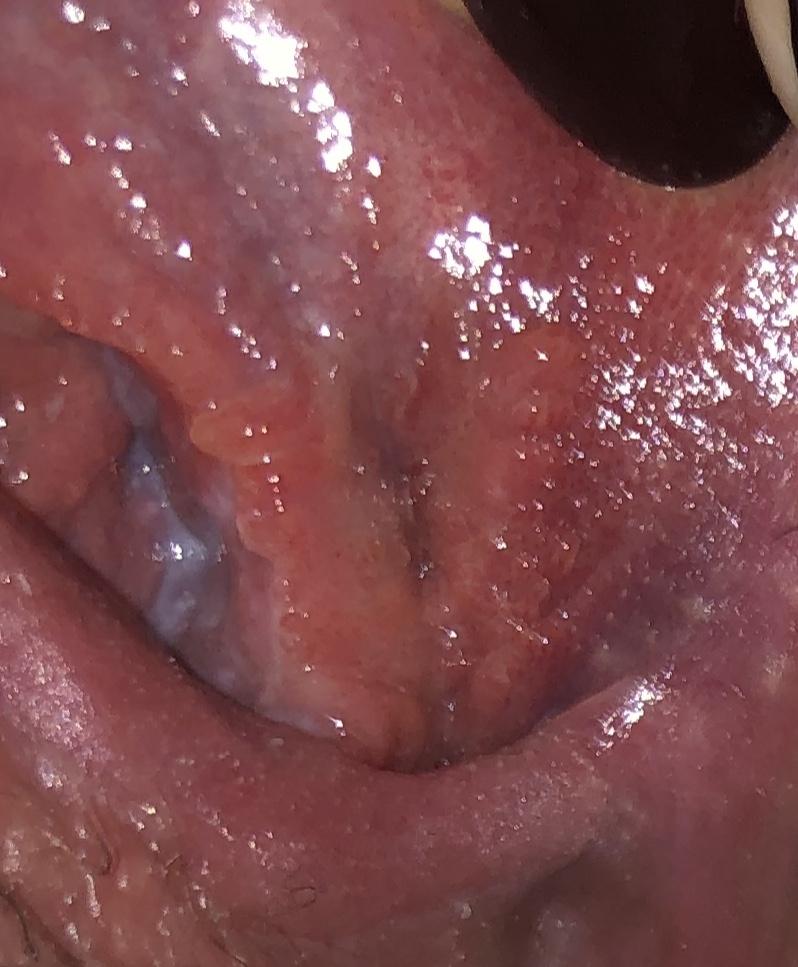 unguente și geluri pentru condiloame oxiuros picazon nariz
