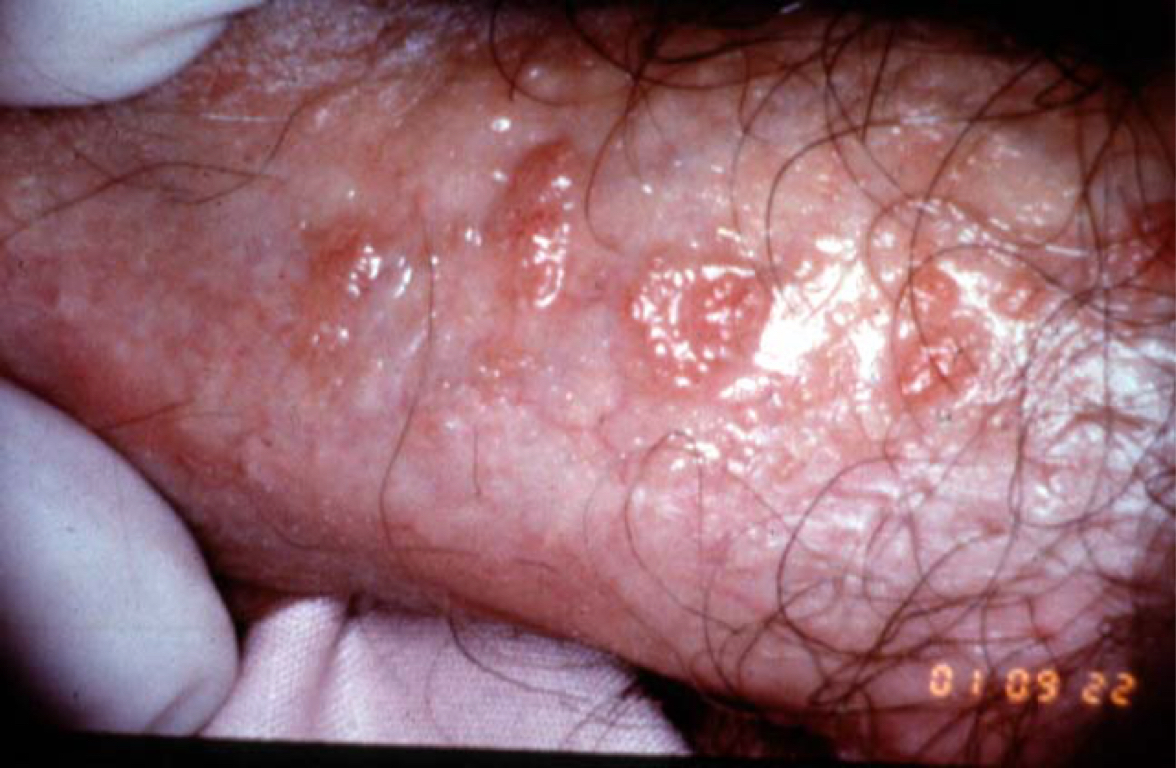 Infectia cu HPV iti afecteaza sau nu fertilitatea?, Human papillomavirus and male infertility
