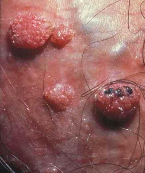 papillomavirus verrues