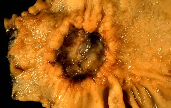 Cancerul la stomac - cauze si tratament