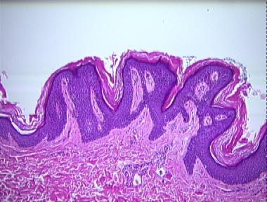 Confluent and reticulated papillomatosis during pregnancy