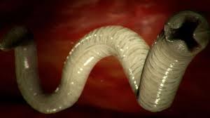 paraziti gliste