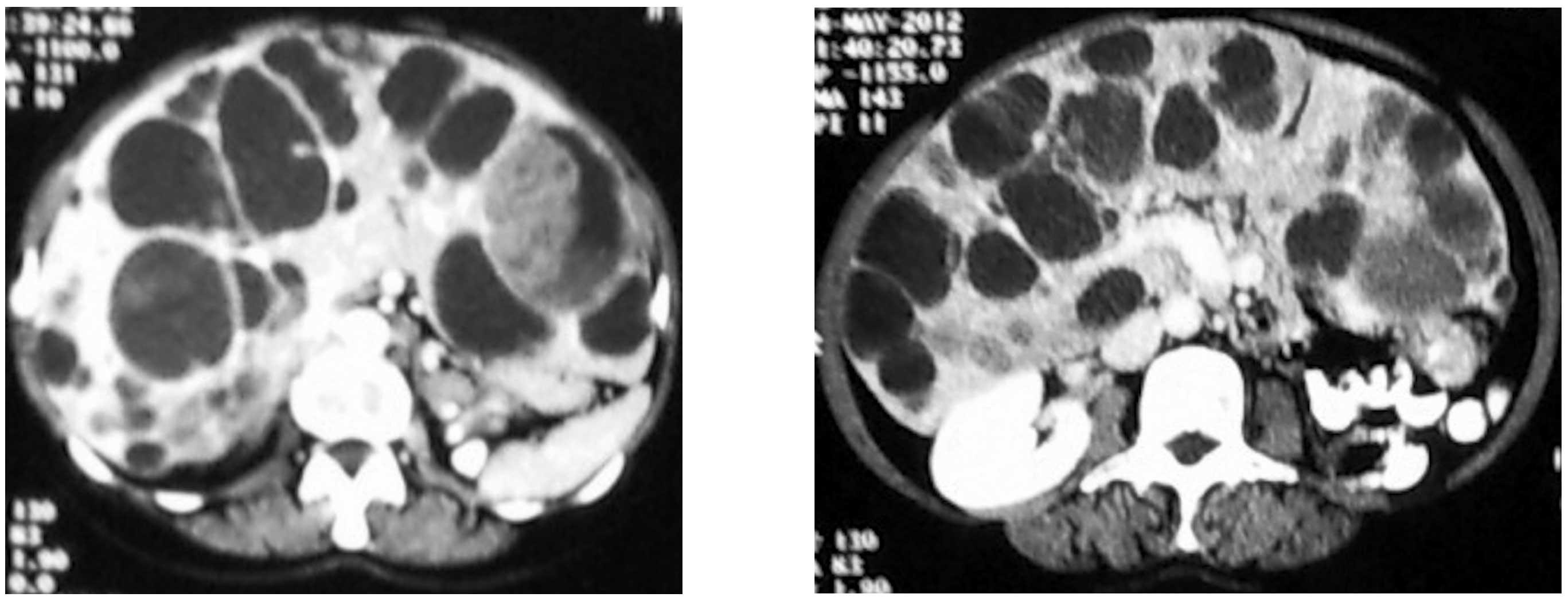 neuroendocrine cancer in liver