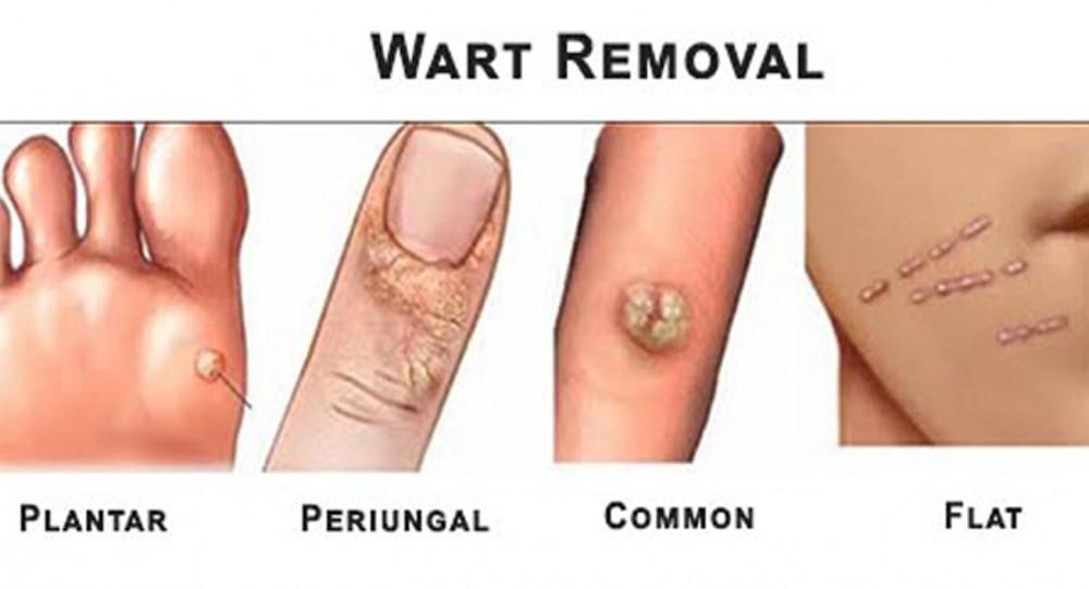 Wart treatment guidelines, Wart on foot or blister. Parazit ve vlasech