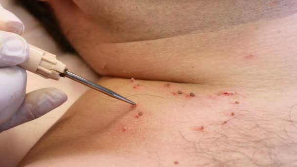 how to remove papillomas on skin
