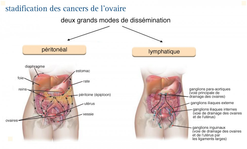 cancer ganglion abdominal)