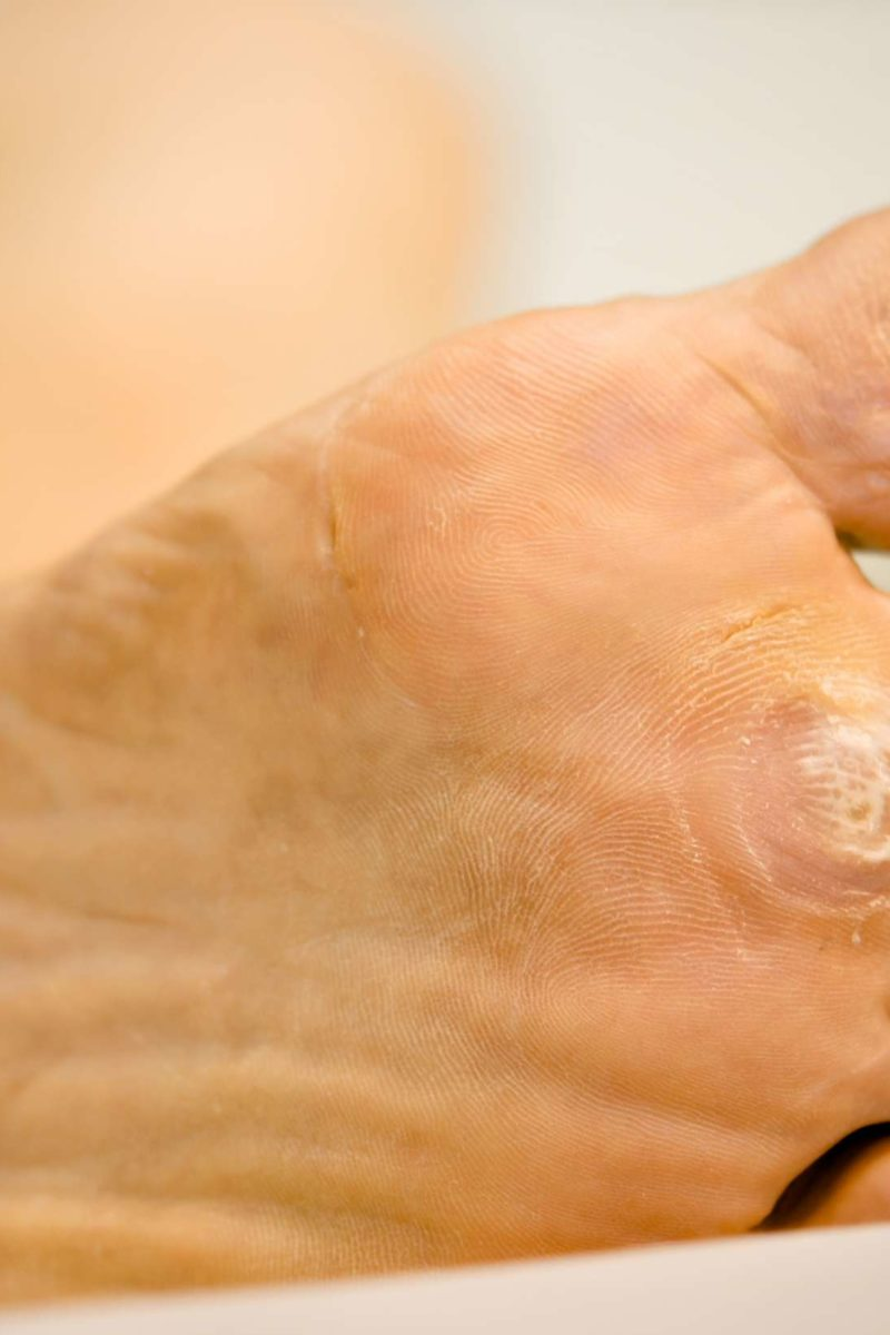 wart under foot symptoms virus papiloma hombres prueba