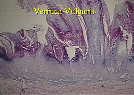 Hpv tip 53 tedavisi, Papilloma lezyon nedir, Papilloma tedavisi