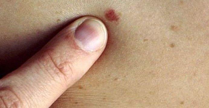 Cum previi cancerul de piele? « Fundatia Romana contra Cancerului de Piele