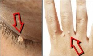 papilloma virus cure uomo cum se îndepărtează papiloamele din gât