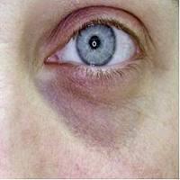 Papilloma sotto occhio Enterobius vermicularis objawy