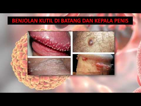 Papilloma palpebrale inferiore