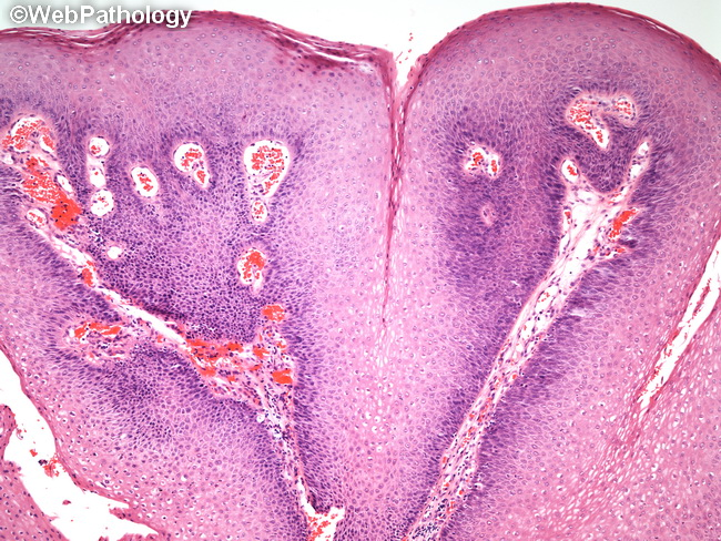 squamous cell papilloma)