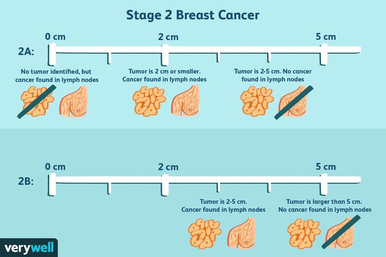 cancer hormonal definition medicamente pentru necroză