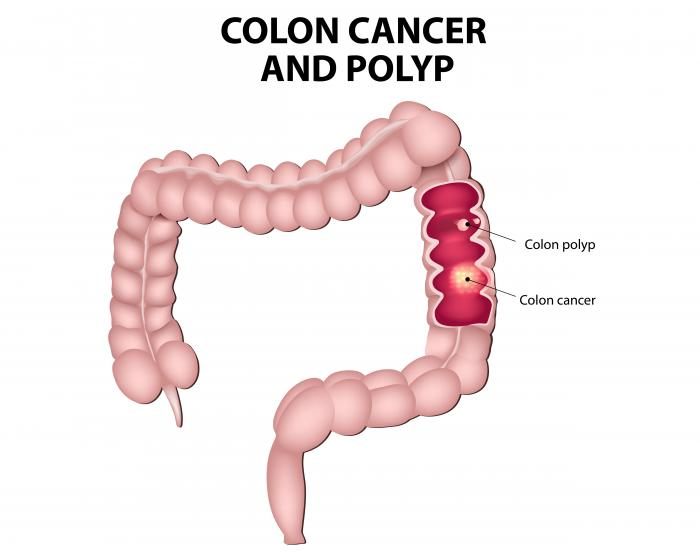 colon cancer benign or malignant)