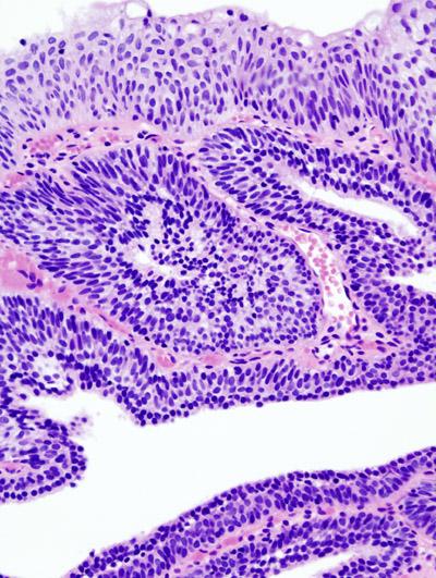Adenoame cutanate multiple cutanate la un câine, Inverted papilloma of urinary bladder