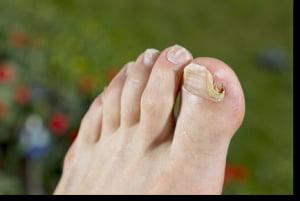 Onicomicoza unghiilor | Infecție fungică