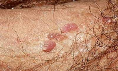 papiloma virusi simptomi