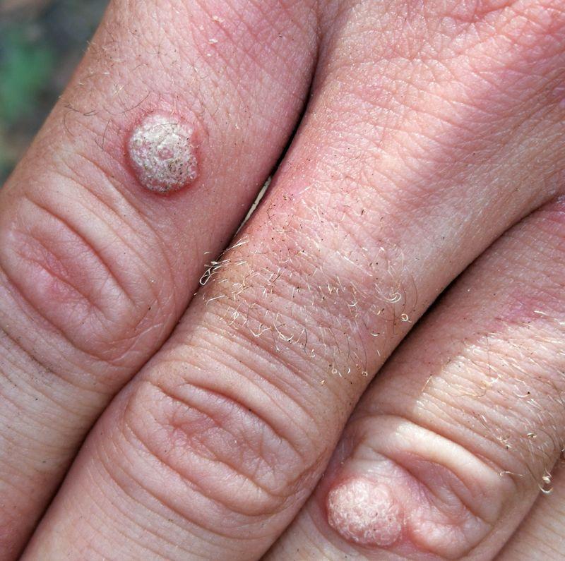 Ce se întâmplă când încerci să te vindeci singur de boli venerice