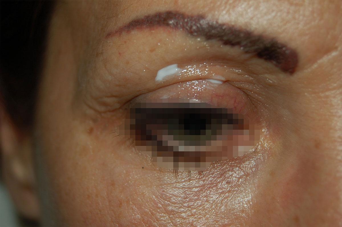 post intervento papilloma virus