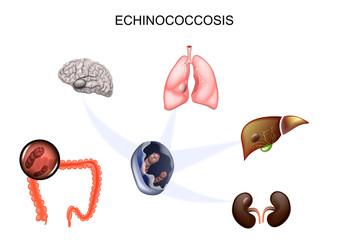 simptome rotunde și de vierme
