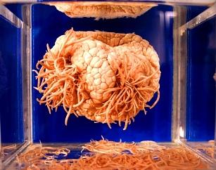 SUA în alertă din cauza unui parazit mortal care atacă creierul uman