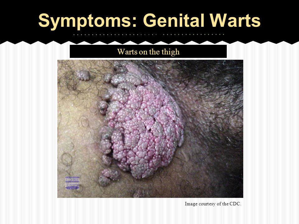 hpv warts getting worse