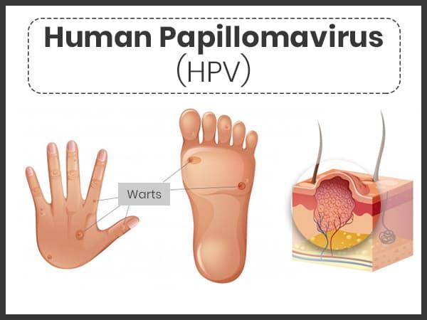 papilloma virus cause e cure)