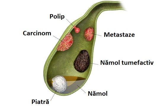 tratamentul papilomului vezicii biliare