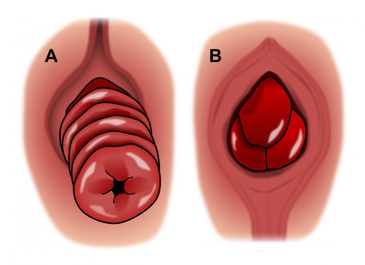recto papillomavirus