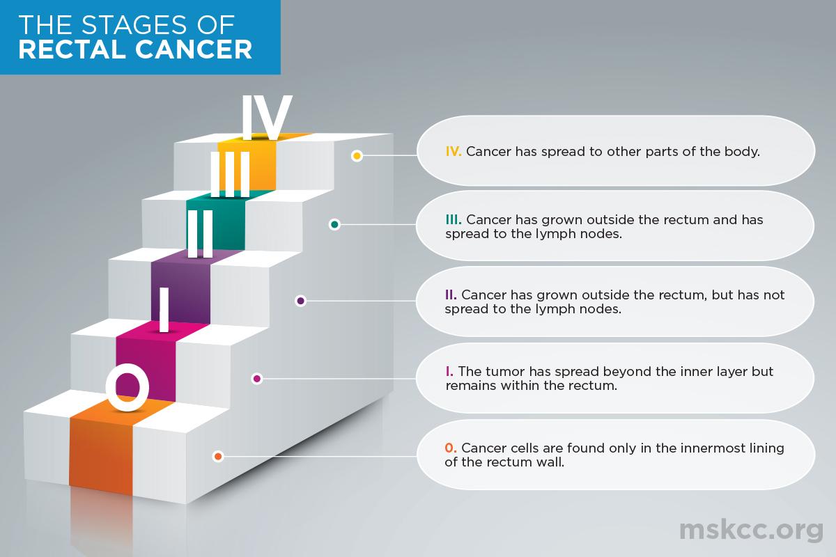 rectal cancer lymph node spread