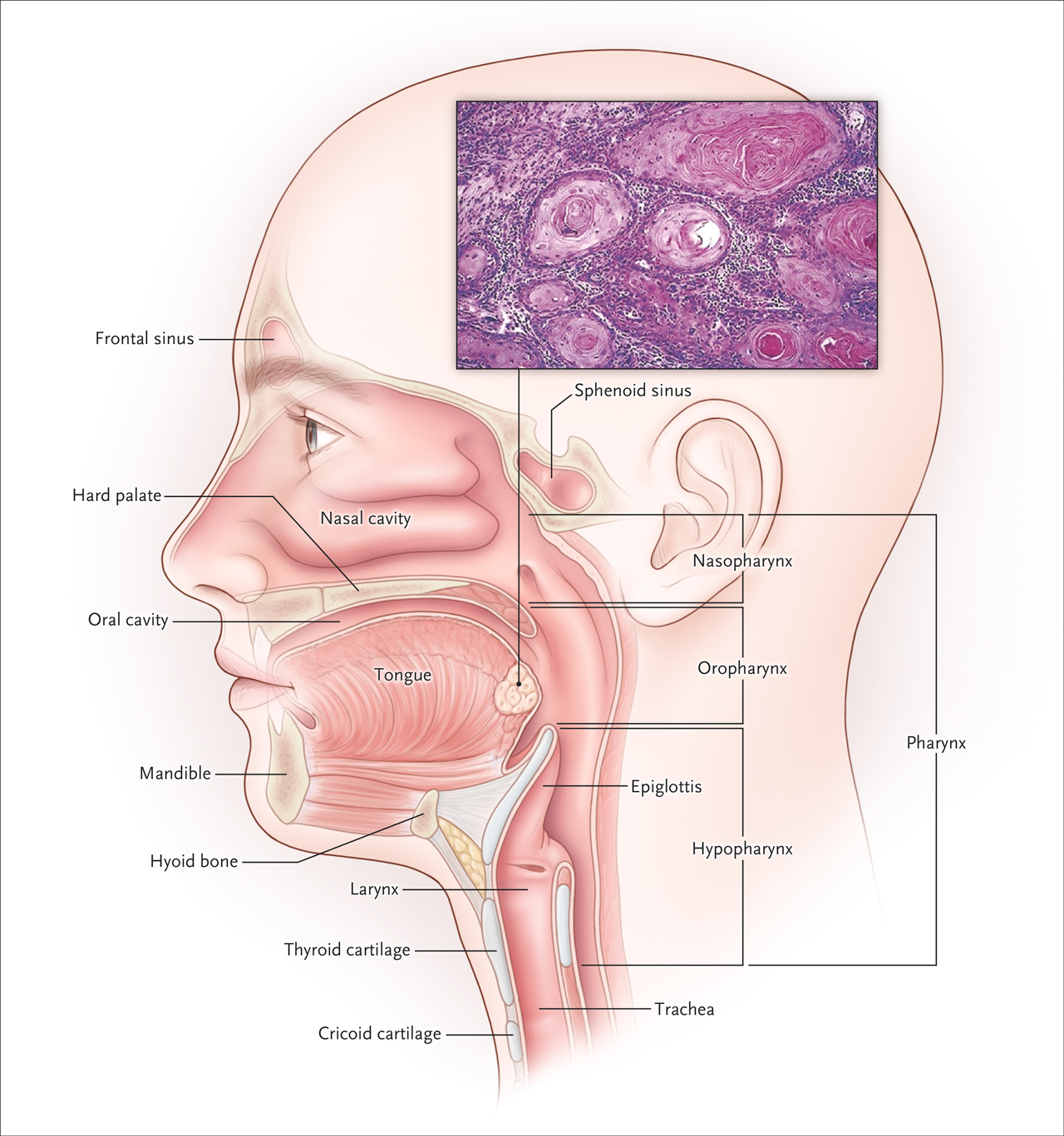 Hpv testing for head and neck cancer. Human papilloma virus kit