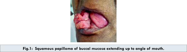 papillomavirus buccal