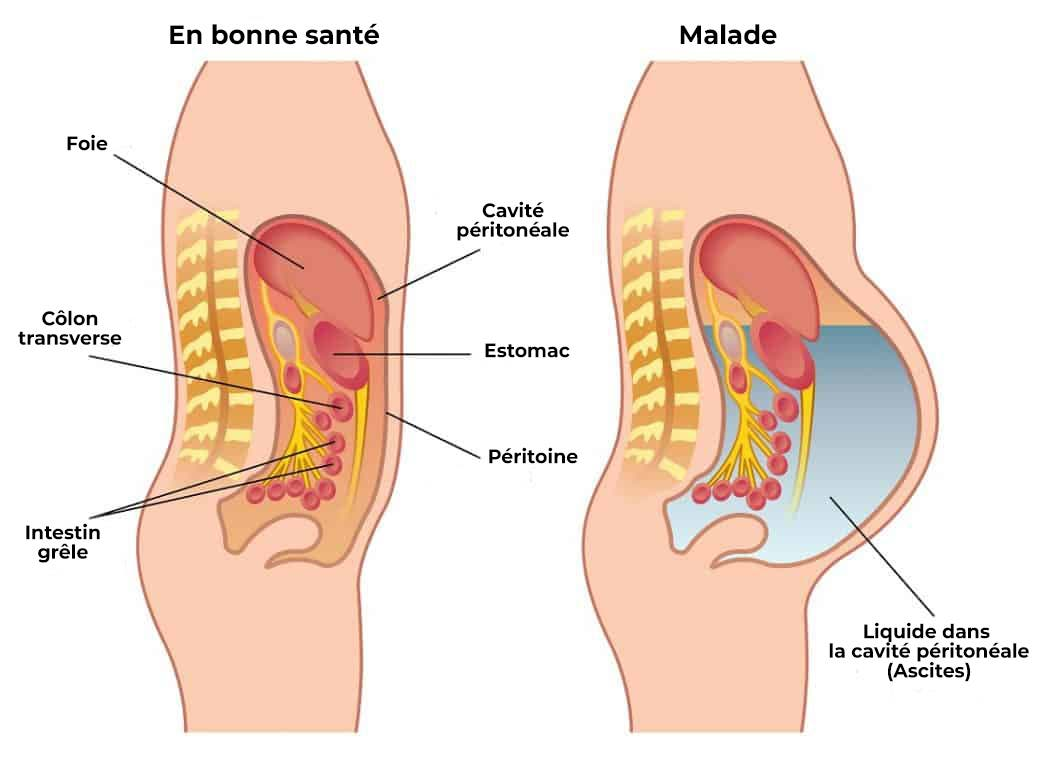Cancer neuroendocrino higado. Tumorile neuroendocrine - anvelope-janteauto.ro
