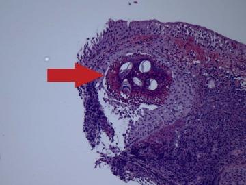 Anticorpi anti – Schistosoma mansoni (Bilharzioza) | anvelope-janteauto.ro