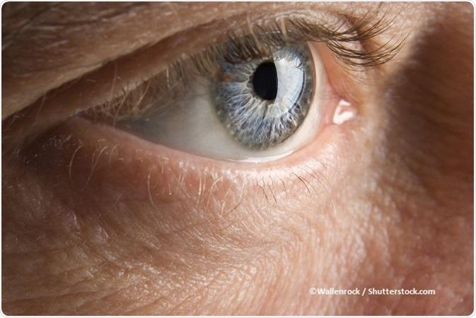 papilloma virus occhi rossi)