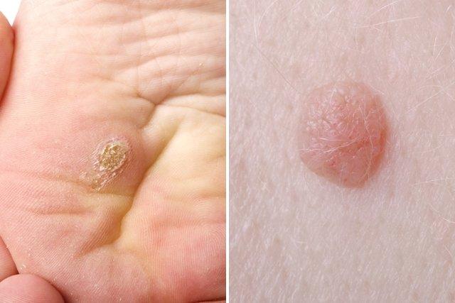 tratarea viermilor de ou termenii tratamentului negi genitale