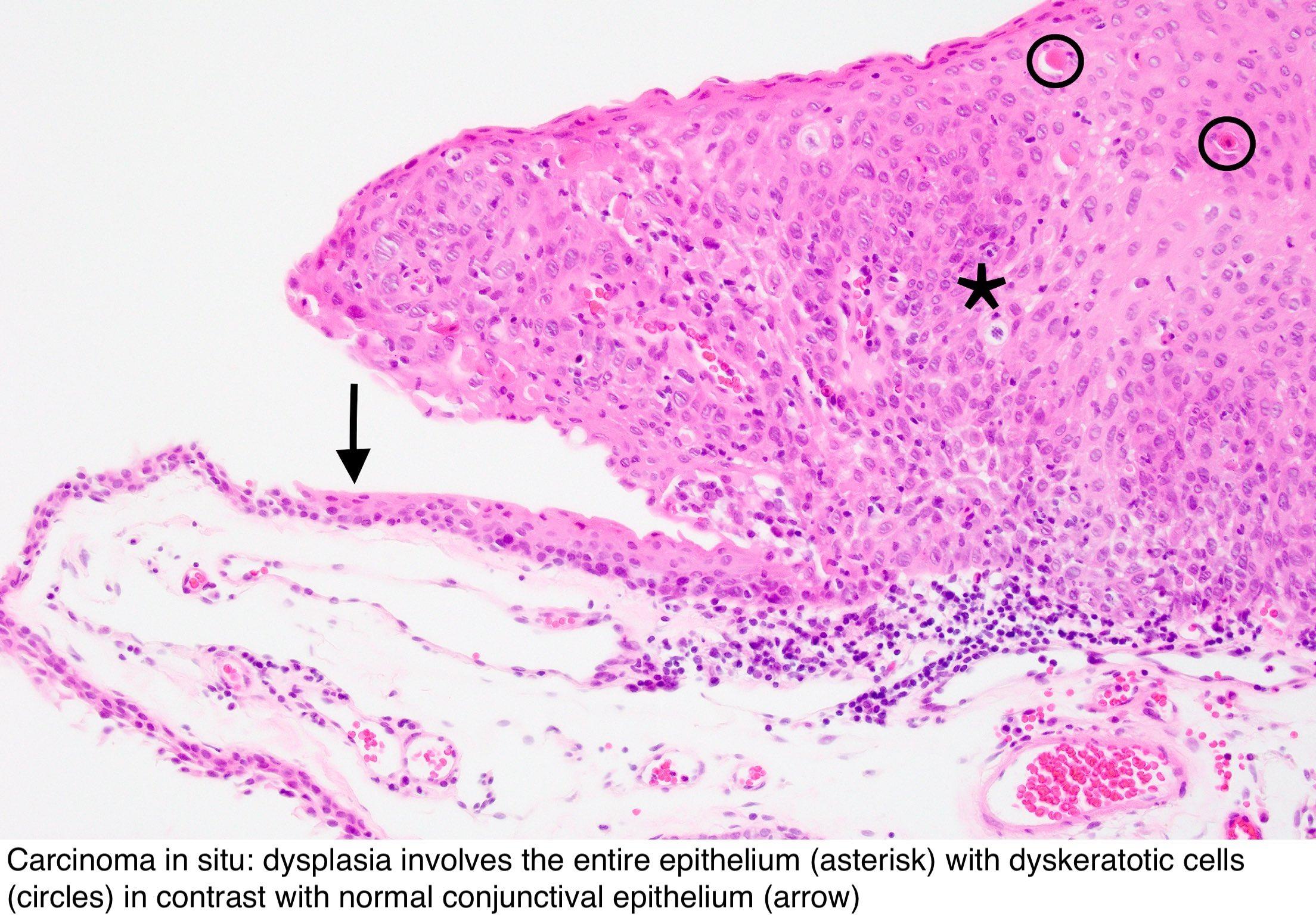 Conjunctival papilloma prognosis - Conjunctival papilloma surgery