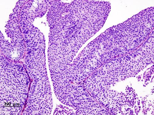 Urothelial papilloma histopathology - Bladder papilloma histopathology
