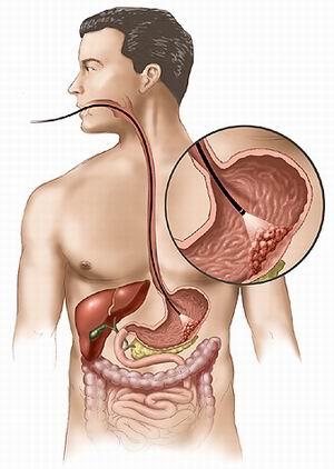 cancer gastric cauze si simptome
