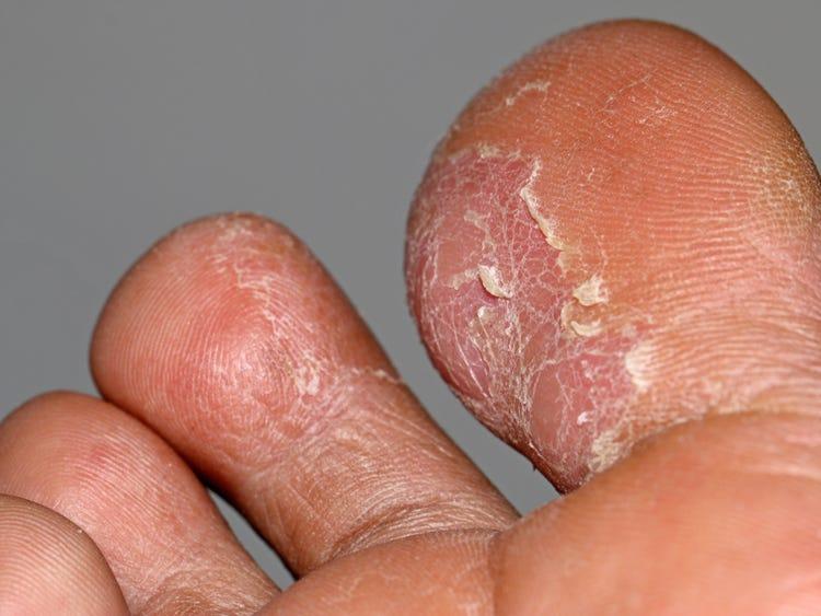 warts hands rash