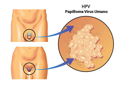 papilloma virus rettale sintomi)
