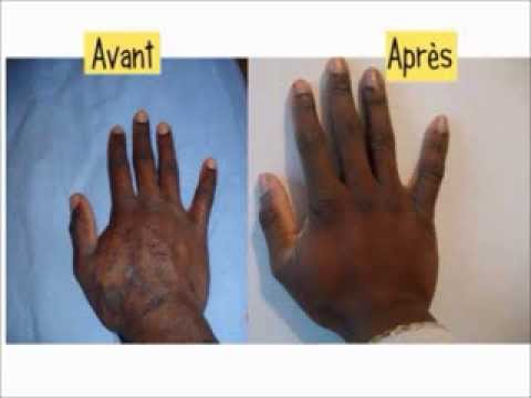 Papillomavirus chez l homme traitement - anvelope-janteauto.ro