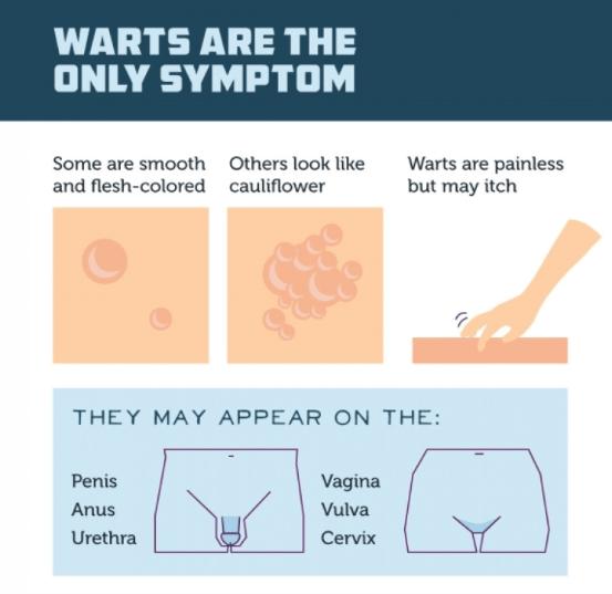 hpv wart areas îndepărtarea timpului de vindecare a verucilor genitale