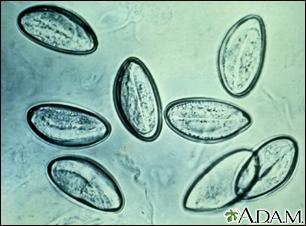 huevos de oxiuros en ninos corpul uman este parazit al viermilor
