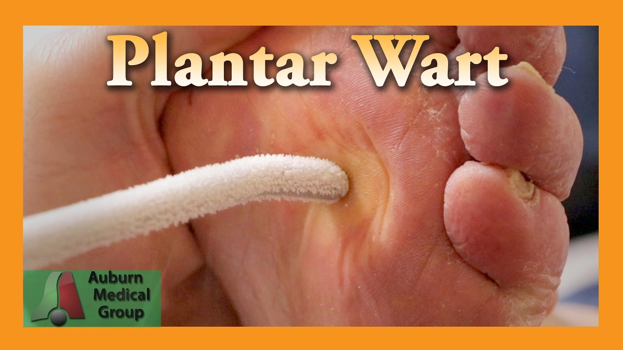 Wart removal on foot doctor Wart treatment by doctor