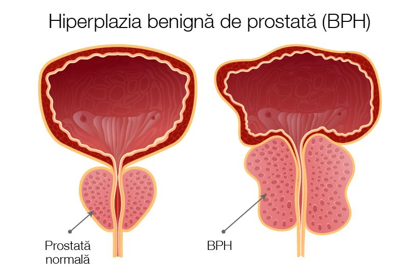 cancerul de prostata simptome)
