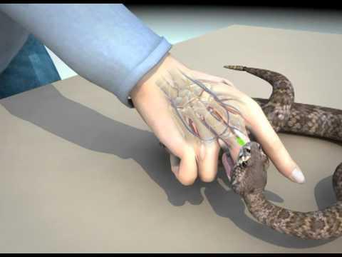 șarpe de tenă)