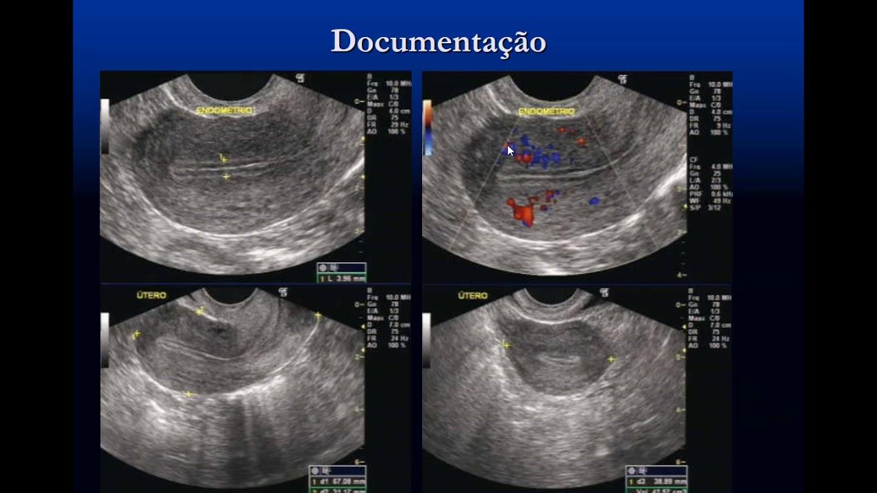 diphildobothriasis în tratamentul femeilor însărcinate)